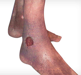 Leg Ulcer Treatment Perth